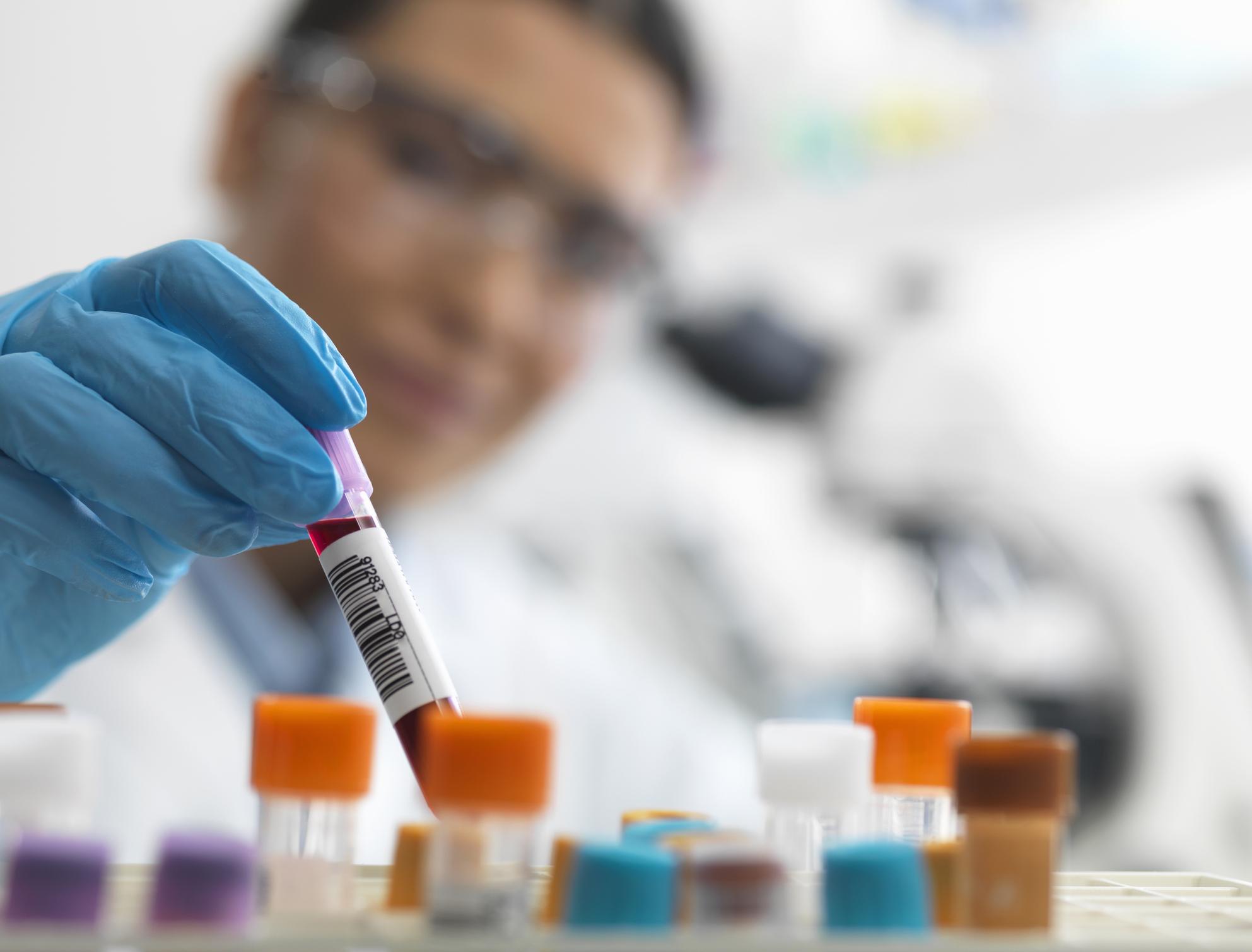 منظمة الصحة العالمية تكشف رابط اختبار إصابتك بفيروس كورونا من عدمه