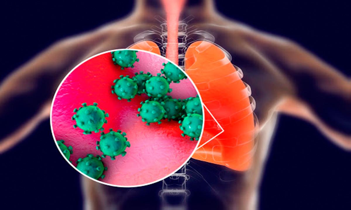 أبحاث فيروس كورونا.. 3 دلائل تنبئ الأطباء قبل حدوث وفاة مصاب الكورونا بــ 10 أيام