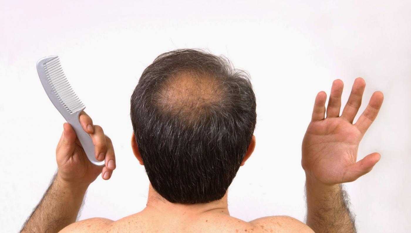 تساقط الشعر ...أسبابه والطرق المثالية لعلاجه 1